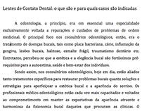 Artigo referente a Lentes de Contato Dental