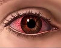 Artigo Referente a Dor nos Olhos